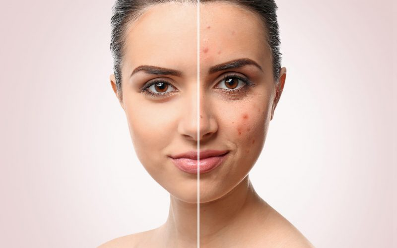 acne treatment procedure